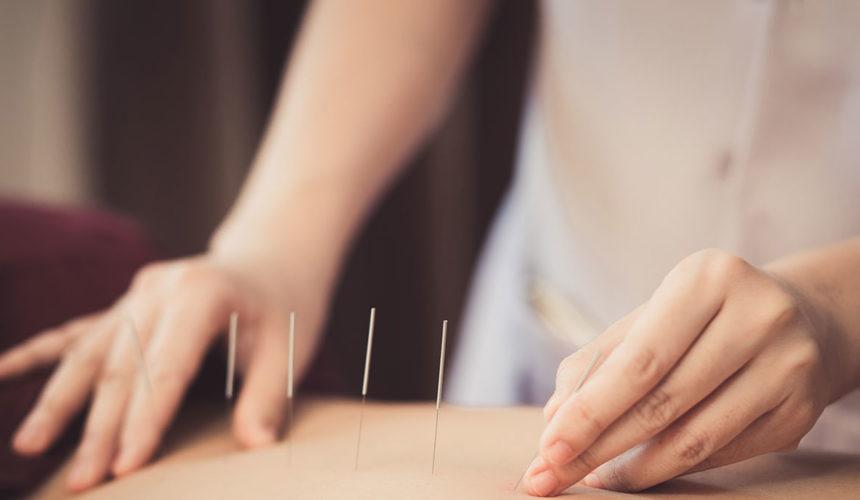 Akupunktura: Jedan lek za pedeset oboljenja